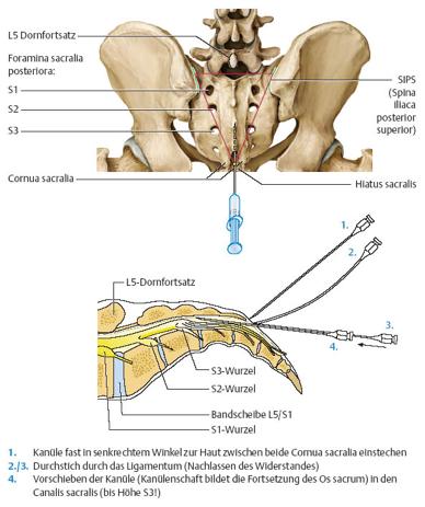 Sacral-epidural-injektion-bild-2013